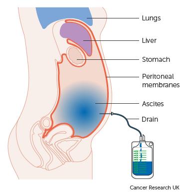endokrin rák terápia
